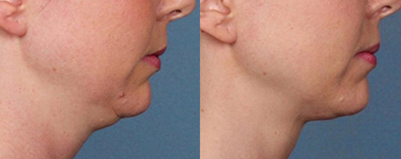 Fat dissolving injections before and after, double chin reduction 02, side view