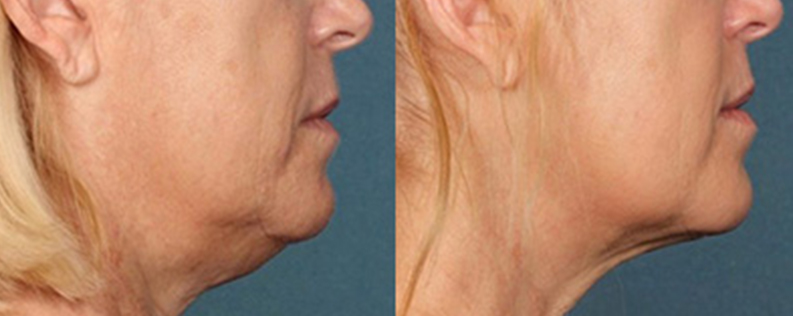 Double chin injections patient, before & after 03, side view