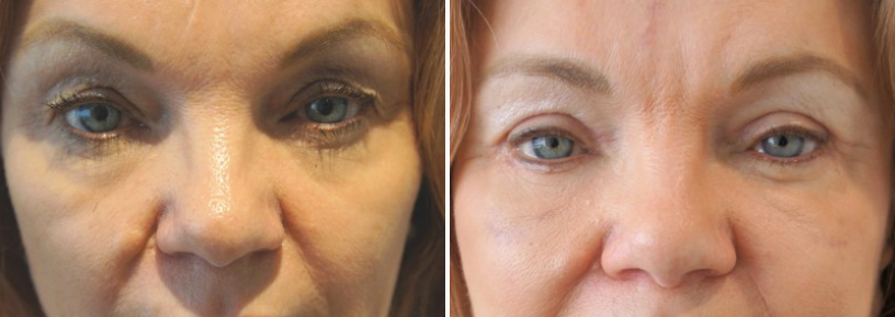 Facial fat transfer & eyelid surgery 06, upper and lower blepharoplasty