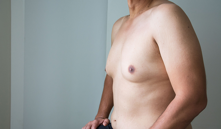 Male breast reduction patient before surgery 01, angle view