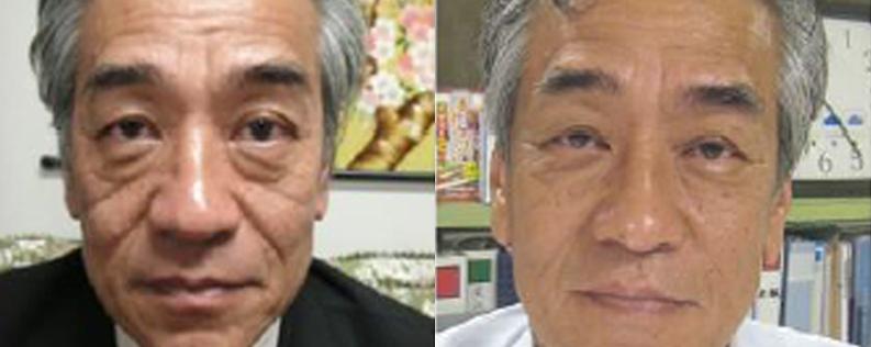 18 months post   Form & Face