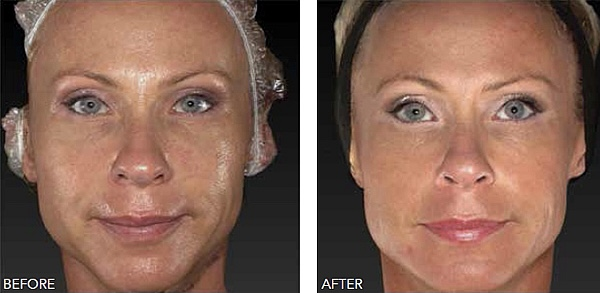 Beauty Booster full face   Form & Face