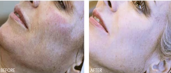 beauty booster smilelines | Form & Face